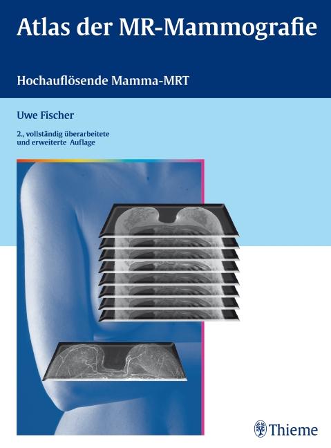 Atlas der MR-Mammographie - Uwe Fischer
