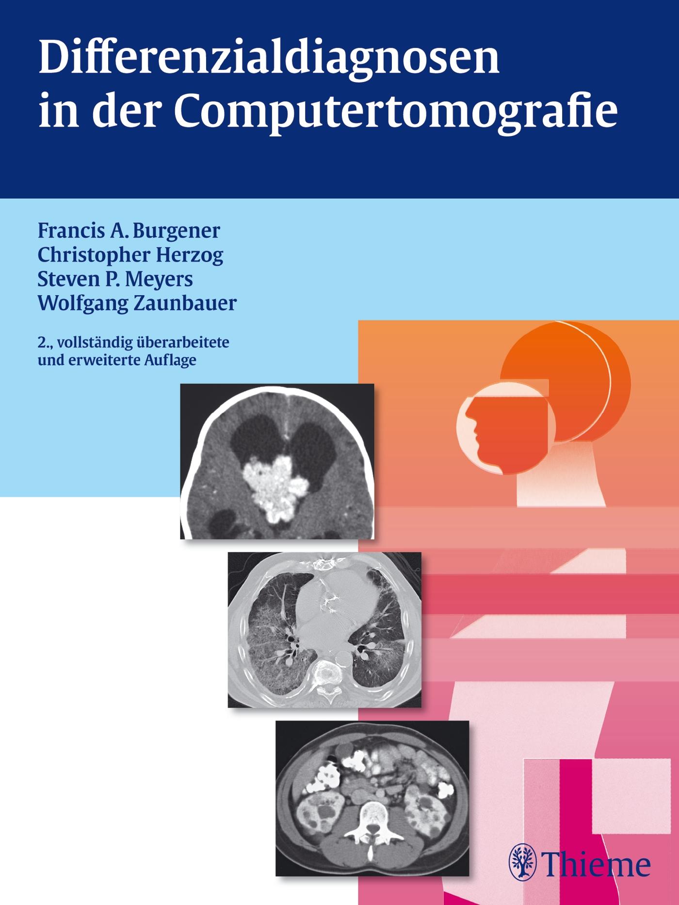 Differenzialdiagnosen in der Computertomografie: Vom Befund zur Diagnose - Francis A. Burgener [Gebundene Ausgabe, 2. Au