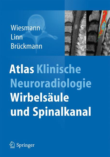 Atlas Klinische Neuroradiologie: Wirbelsäule und Spinalkanal - Martin Wiesmann [Gebundene Ausgabe]