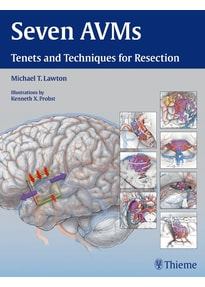 Seven AVMs. Tenets and Techniques for Resection - Michael T. Lawton  [Gebundene Ausgabe]